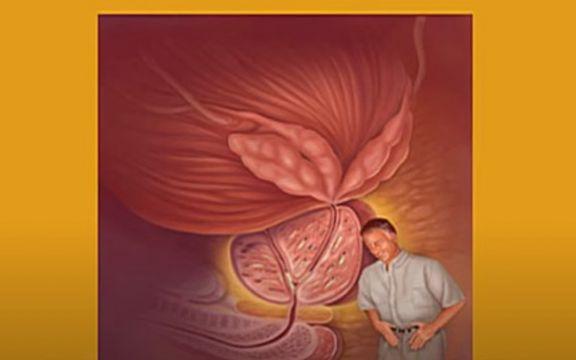A prostatitis rákhoz vezet